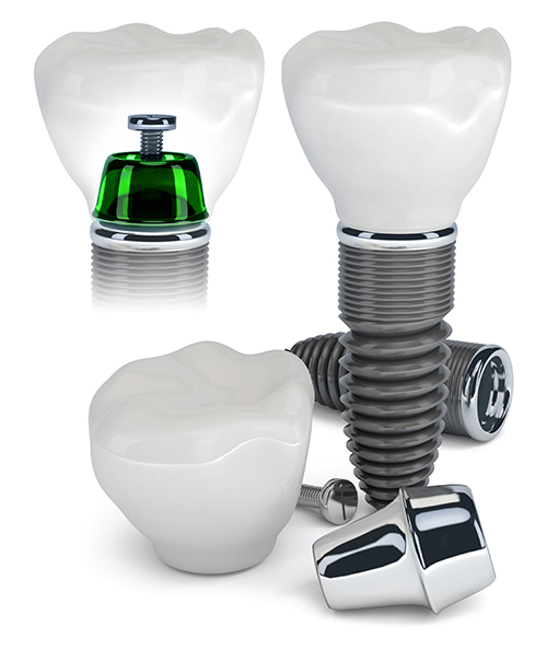 Dental Implants in Radburn