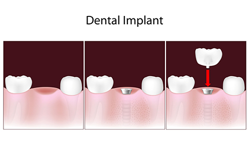 Fair Lawn Dental Implants